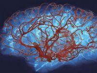 Судинні захворювання головного мозку