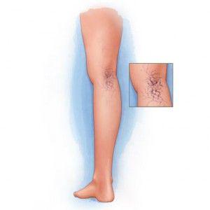 Судинні зірочки на обличчі і ногах: причини появи, як видалити