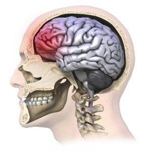 Струс мозку: ознаки у дітей і дорослих, що робити, наслідки