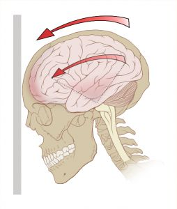 Струс мозку