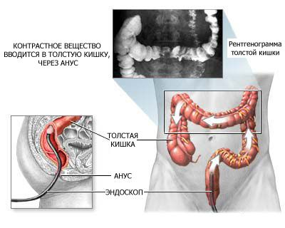 проведення ирригоскопии