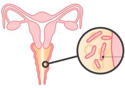 Способи лікування молочниці у жінок