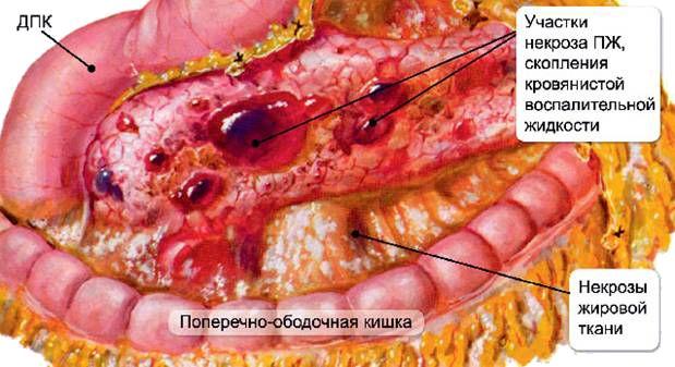 Способи лікування панкреонекрозу підшлункової залози