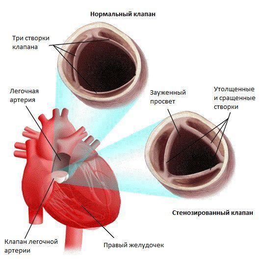 Стеноз легеневої артерії у дітей і дорослих: причини, симптоми, операція