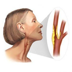 Стеноз (звуження) сонних артерій: як розвивається, ознаки і ступеня, лікування