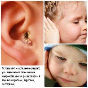 Стан вуха при гострій формі отиту