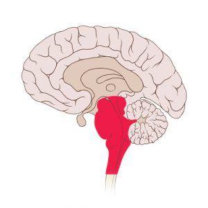 Стовбурової інсульт: види (ішемічний, геморагічний), причини, симптоми, лікування, прогноз