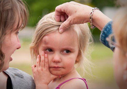 Дівчинка забила лоб