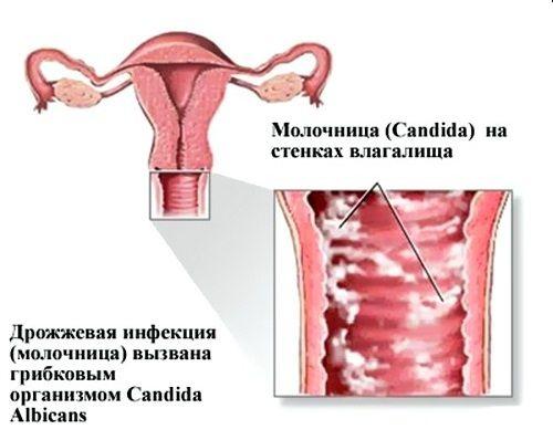 Що таке молочниця або кандидоз