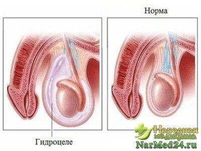 Своєчасно виявлення гидроцеле і збереження чоловічого здоров`я