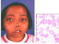 Талассемия - хвороба, викликана гемоглобіном
