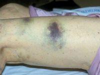 Тромбоцитопенія - що це за хвороба?