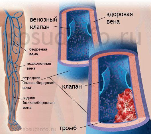 тромбофлебіт