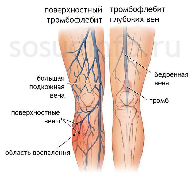 Тромбофлебіт поверхневих та глибоких вен