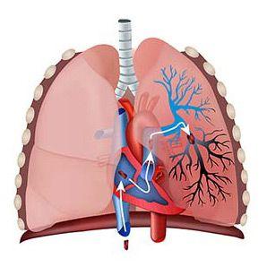 Тромбоемболія легеневої артерії (тела): причини, ознаки, терапія