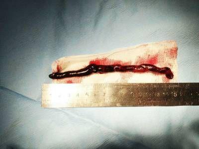 судинний тромб