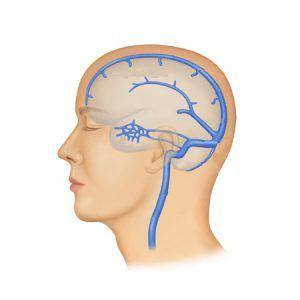 Тромбоз синусів головного мозку: причини, симптоми, лікування