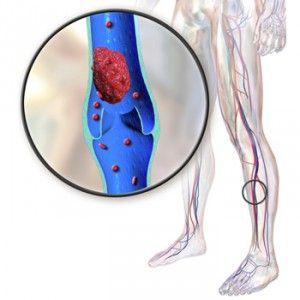Тромбози судин - вен і артерій: види, ознаки, діагностика, лікування