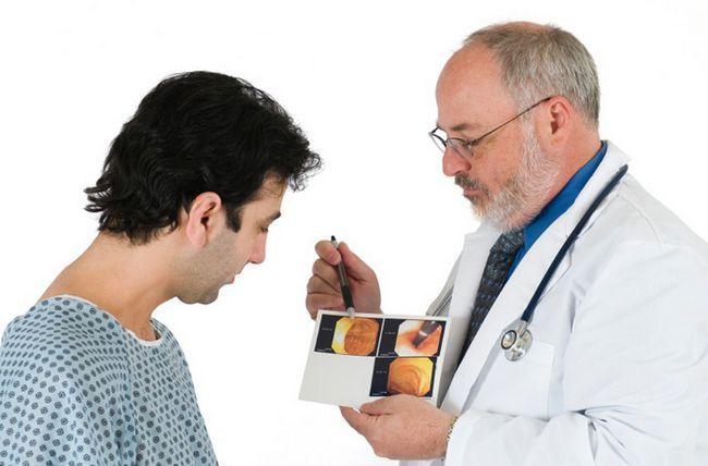 Тубулярная аденома товстої кишки