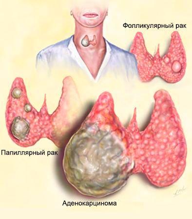 види раку щитовидки