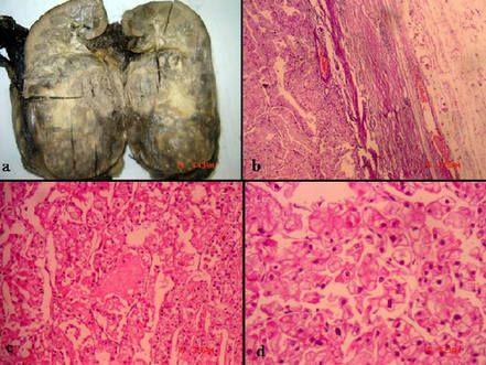 клітини раку щитовидки