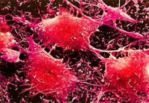 рак щитовидки під мікроскопом