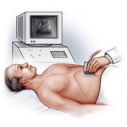 Ультразвукова діагностика (узд) судин: як і коли роблять, переваги, приватні ситуації