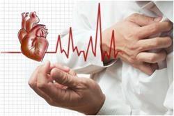 Порушення серцевого ритму