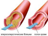 атеросклероз судини