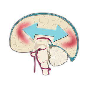 Забій мозку: причини, ознаки та діагностика, лікування, прогноз, реабілітація