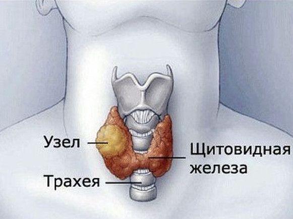 Вузловий зоб щитовидної залози