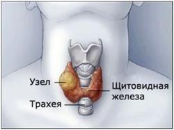 Вузли на щитовидці: причини виникнення та тактика лікування