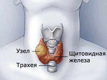 Вузли в щитовидній залозі