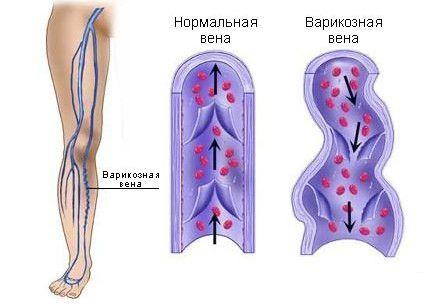 Механізм і причини варикозного розширення вен
