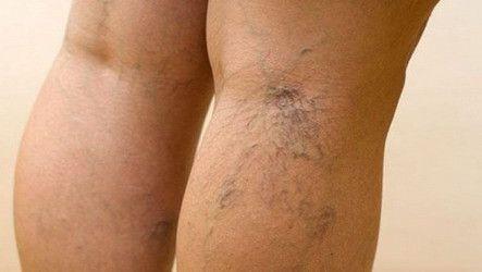 Причини появи варикозу вен на ногах