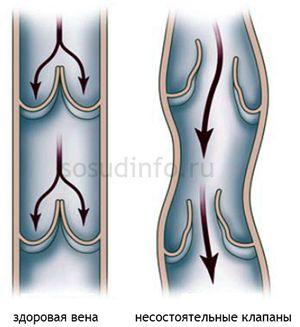 Венозна недостатність ніг: види, причини, прояви, ускладнення, лікування