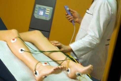 Нейростімуляція м`язів ніг