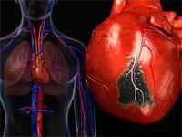 Можливі симптоми інфаркту міокарда