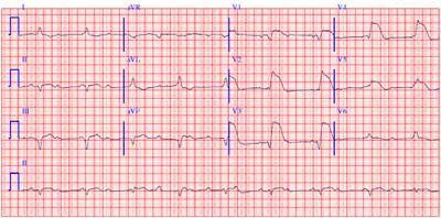 ЕКГ при інфаркті