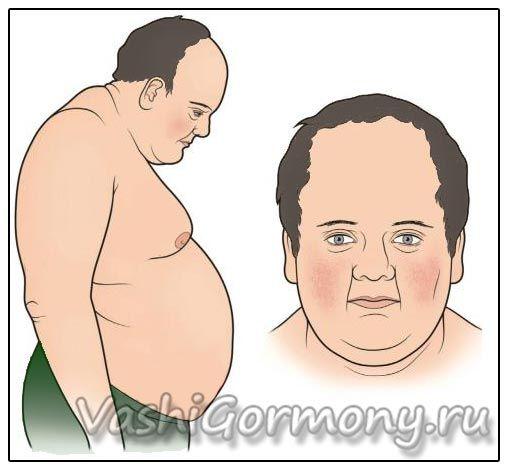 Малюнок: надлишок гормону кортизол може викликати зайву вагу