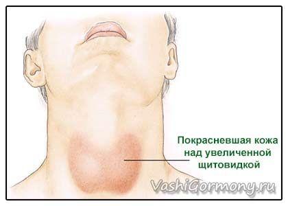 Все що ви хотіли знати про запалення щитовидки