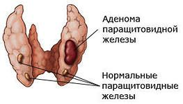 аденома паращитовидної залози