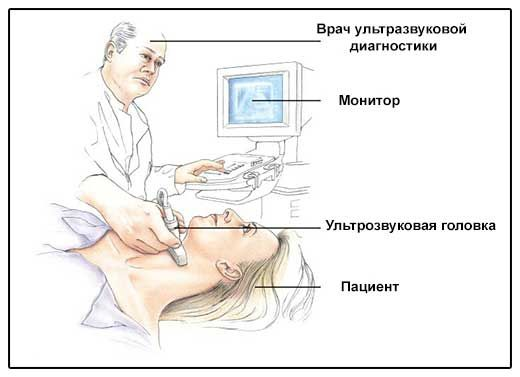 Узі щитовидної залози - ілюстрація