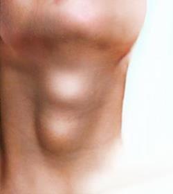 Все про вузли на щитовидній залозі: симптоми, діагностика та лікування