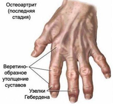 Хвороби кистей рук