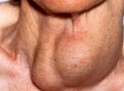 Захворювання щитовидної залози, відкрите в японії - зоб хашимото