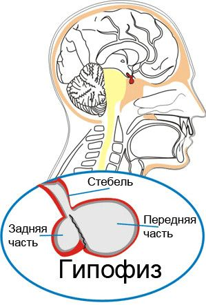 мікроаденома гіпофіза