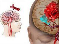 Захворювання головного мозку судинного походження