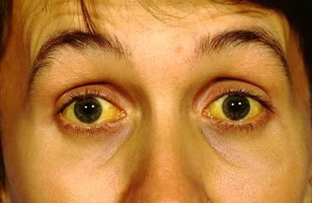 Желтушность склер очей