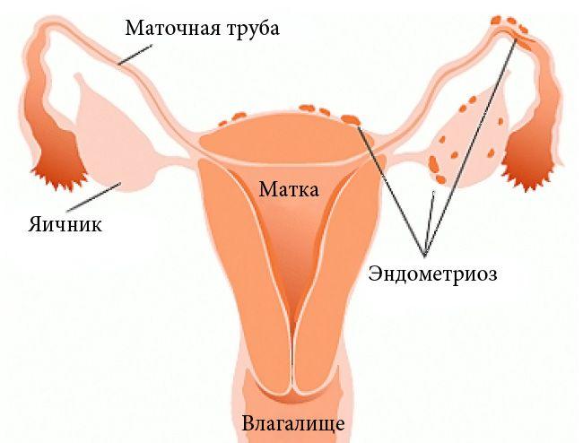 Що таке ендометріоз